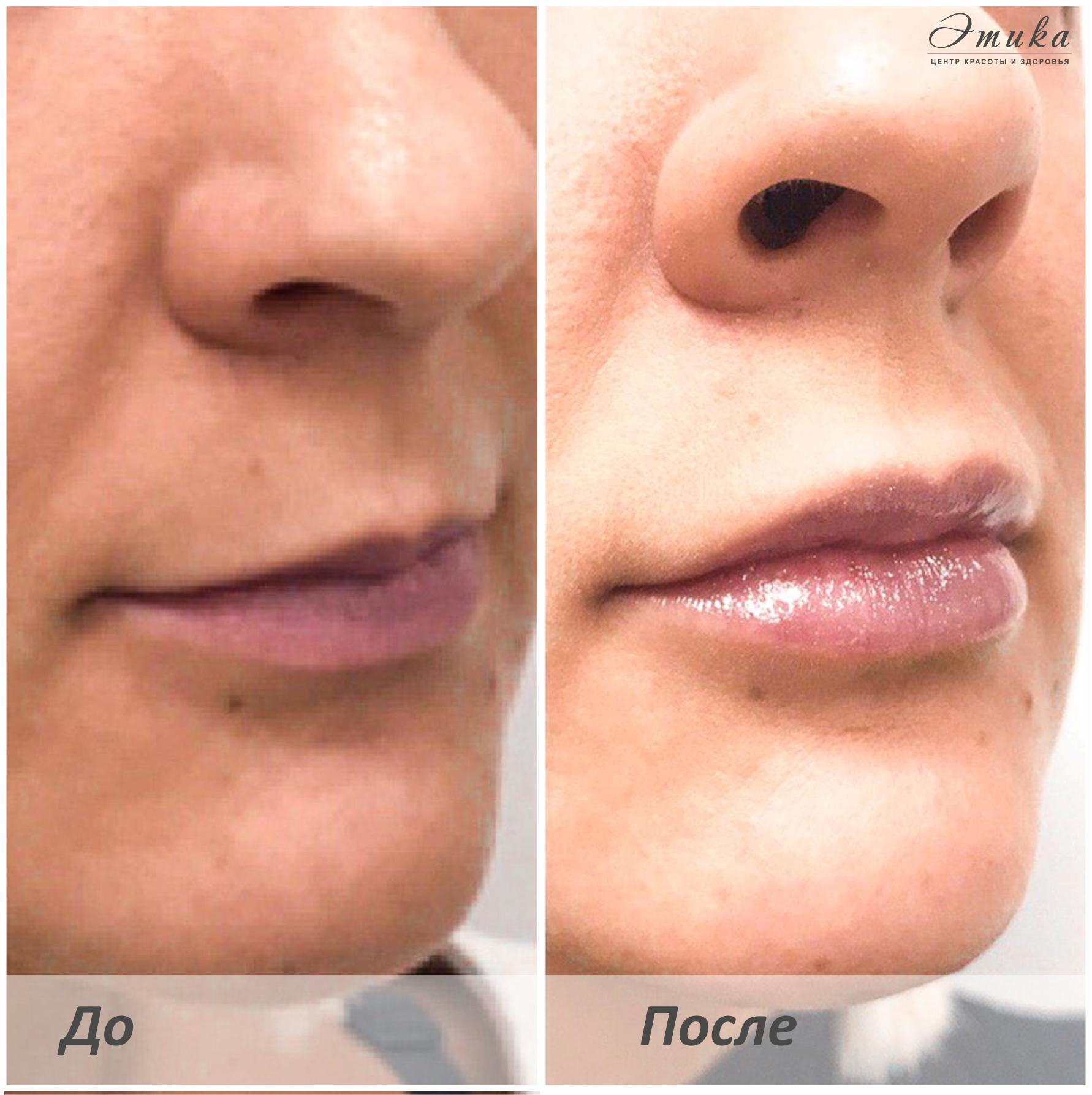 увеличение и коррекция формы губ москва